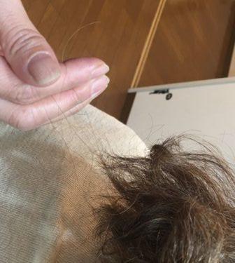 ドセタキセル(タキソテール)の脱毛について